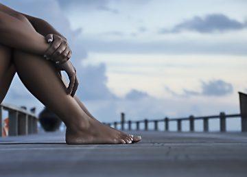 Piel blanca es hasta tres veces más vulnerable a sufrir quemaduras