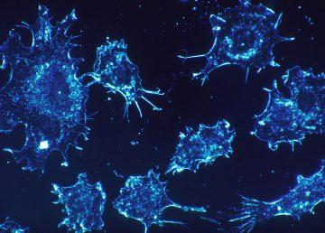 Investigan una nueva terapia para el tratamiento de cinco tipos de cánceres