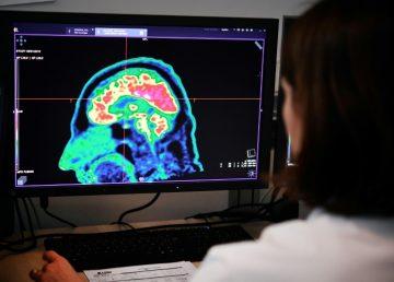 Estudio descubre mecanismo del cerebro para regular la sensación de dolor