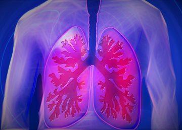 Nuevos tratamientos alargan hasta 7 años vida de enfermos de cáncer de pulmón